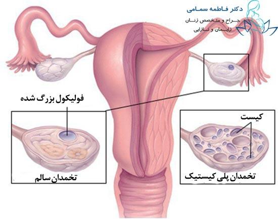 نتیجه تصویری برای کیست تخمدان | علت و علایم داشتن کیست در تخمدان | راه درمان کیست تخمدان